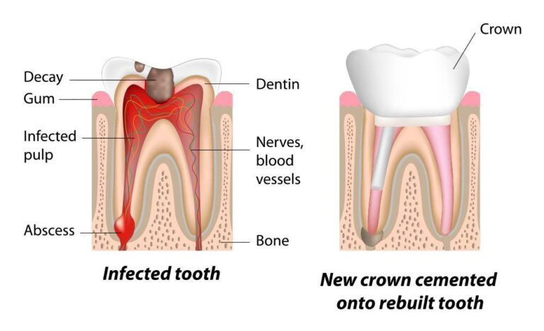 Best Root Canal Treatment in Lucknow   Root Canal Treatment Near Me