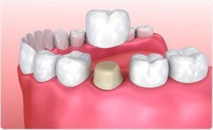 Best Dental Crown & Bridges Clinic in Lucknow ​