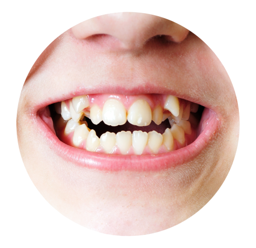 Orthodontic Treatment in Lucknow