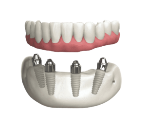 Dental Implant in lucknow